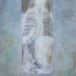 Scoliosis as Art